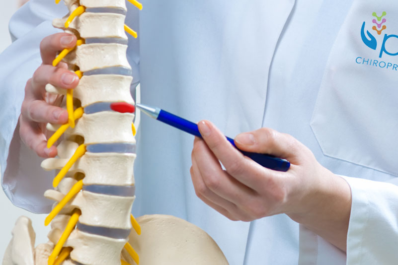 Pulse Chiropractic of Houston, Spinal Disc Herniation