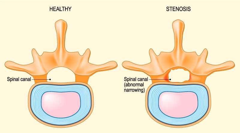 Pulse chiropractic of Houston Texas, treating Spinal Stenosis and Disability